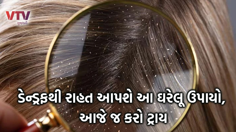 home remedies for dandruff use these amazing things to remove dandruff  from hair