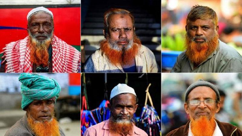 Orange Beard Becomes Fashion Statement