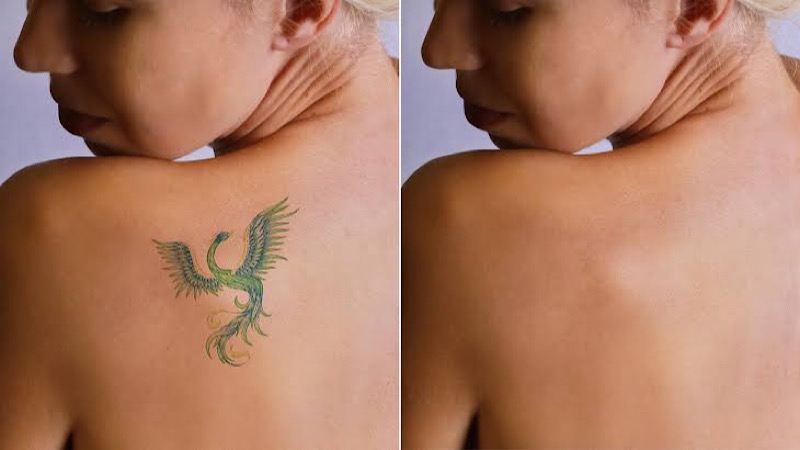 tips to remove permanent tattoos