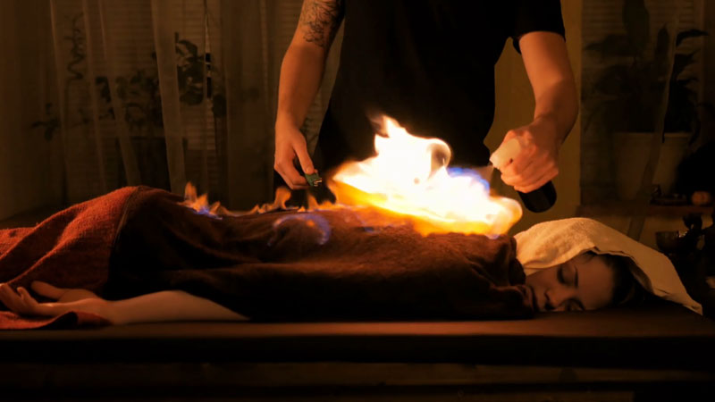 Fire therapy in china sets patients up in flames to cure chronic illness