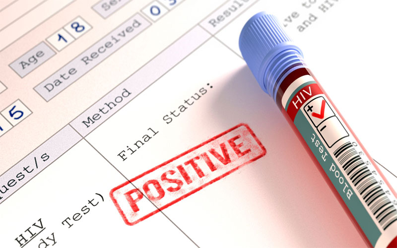 More than 400 people have tested HIV positive in Pakistan