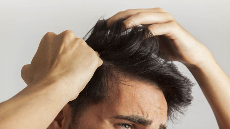 daily use of hair gel can cause these hair problems