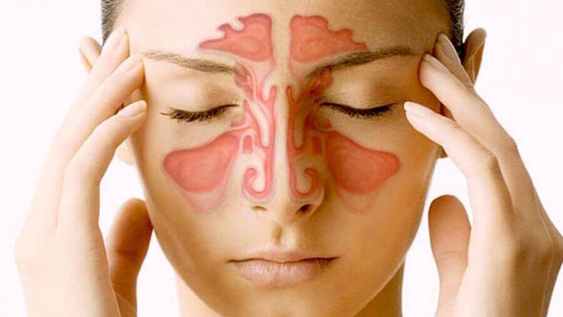 Best home remedies for sinus infection
