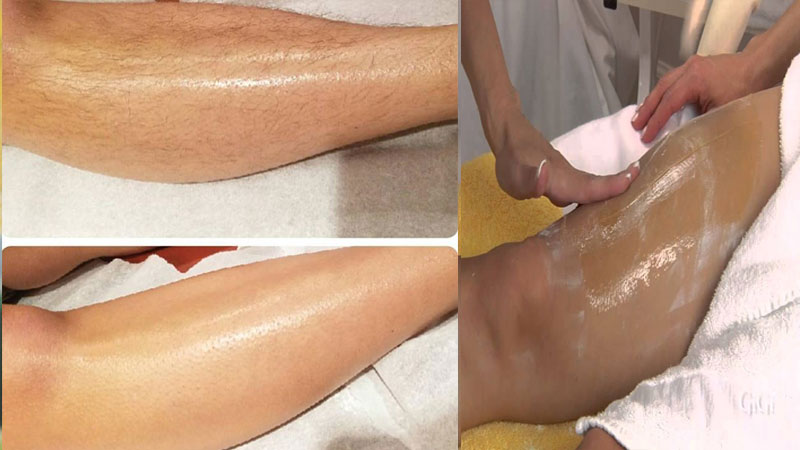 Home Remedies To Get Rid Of Unwanted Body Hair