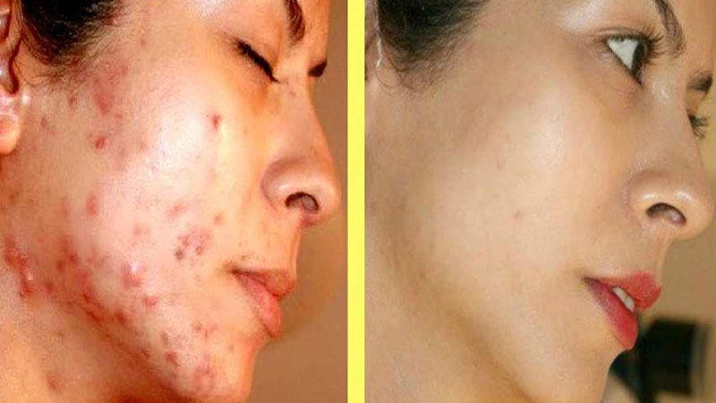 beauty benefits of black gram