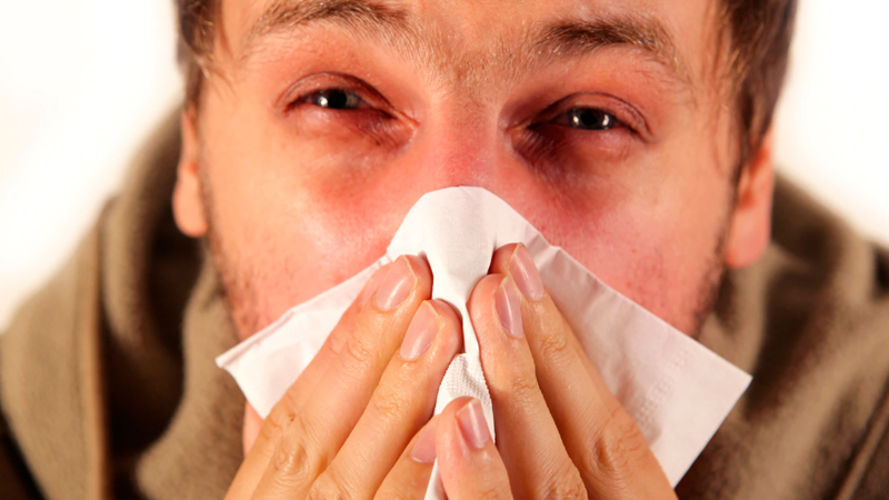 allergy symptoms and treatment at home