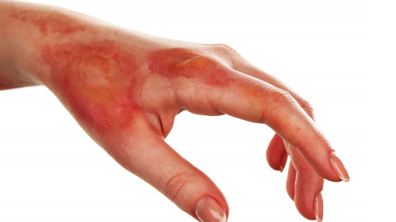 How To Treat A Burn First Aid Treatment for injuries and Burns