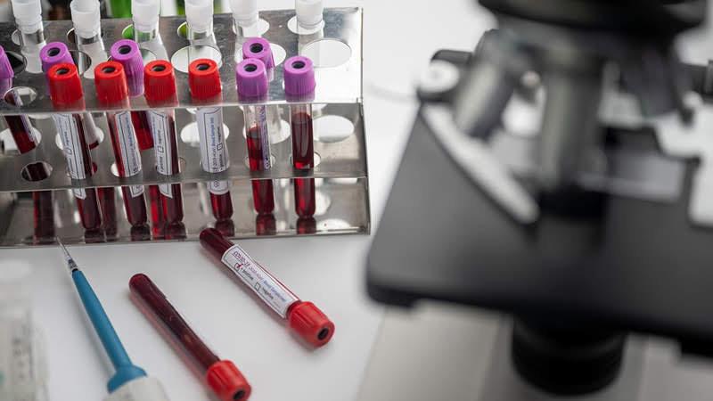 Gujarat health department coronavirus 25 June 2020 update Gujarat