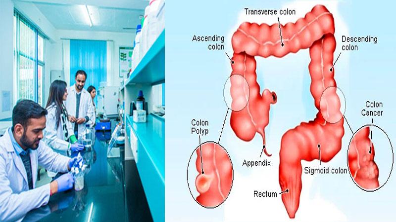 Smart gel for colon cancer treatment