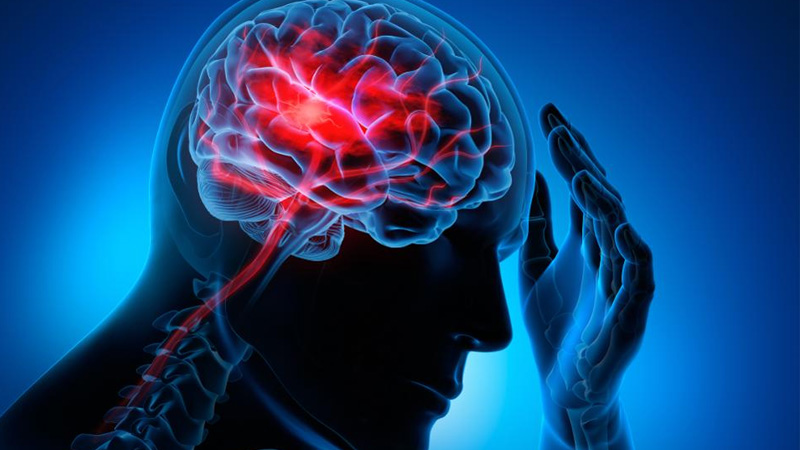 headache brain fog paralysis mirgi strokes neurological disorders increased in covid 19 recovered-patients