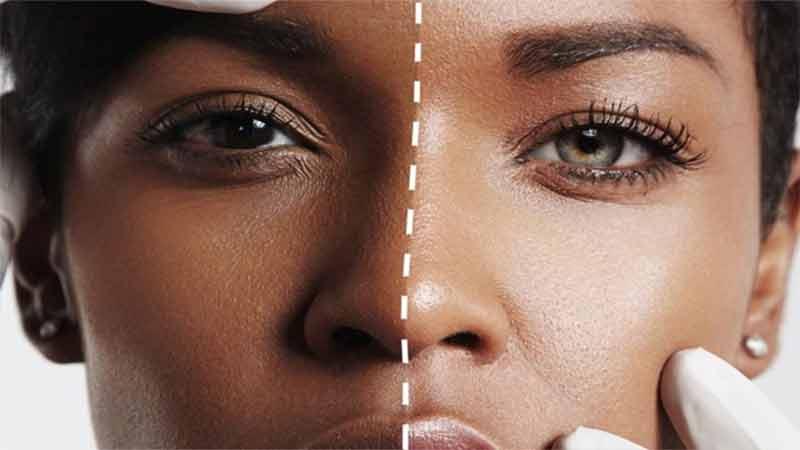 Adopting these beauty tips will whiten your darkened skin