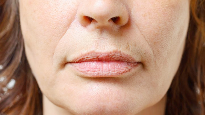 Know reasons of wrinkles of face in young age