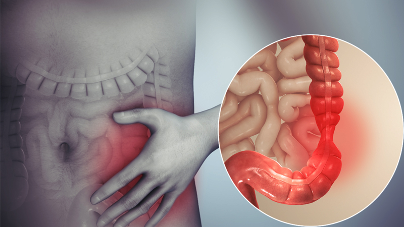 What is Irritable bowel syndrome in females