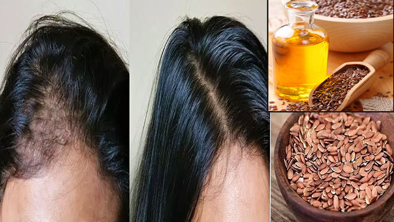 benefits of flaxseed seeds for hair