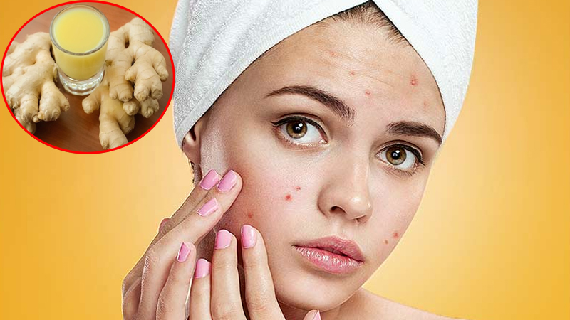 Ginger Face Pack For Dark Spots and winter skin problems