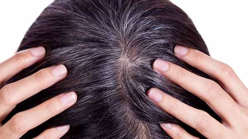 effective and Tested Home Remedy for Grey Hair