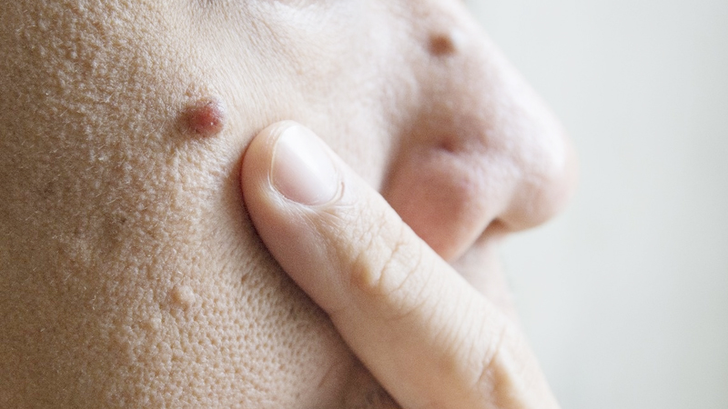Remedies To Get Rid Of Warts On Face