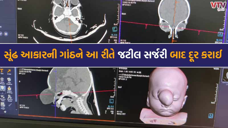 Historically-complicated surgery at SMS Hospital, baby born with as like Ganeshji's trunk