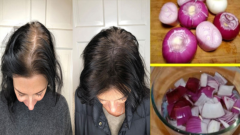 onion will increase hair growth know how to use