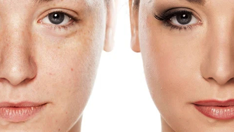 best tips and remedies for healthy, soft and glowing skin